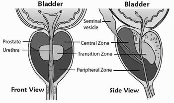 Transitional Zone Prostate