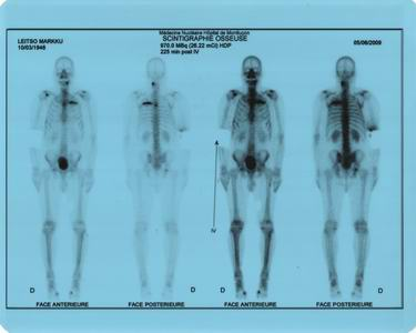 cáncer de próstata enantones